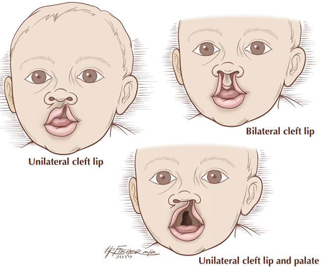 graphic of a unilateral cleft lip, bilateral cleft lip and a unilateral cleft lip and palate