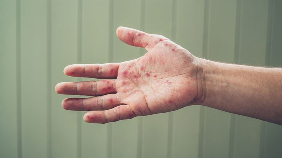 Hand with blisters from hand foot and mouth disease
