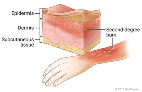 Second-degree burn on arm, with cross-section of skin showing redness and swelling in top two skin layers