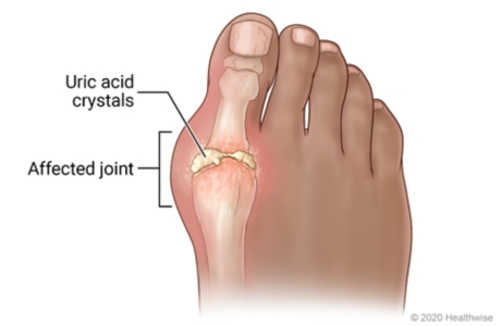Picture of gout in the big toe