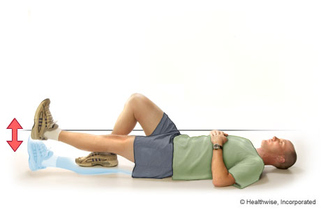 Patellar Tracking Disorder: Exercises | CS Mott Children's