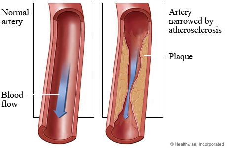 Normal coronary artery and blood flow and an artery narrowed by atherosclerosis