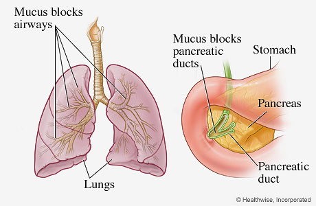 Picture of the organs most frequently affected by cystic fibrosis (lungs and pancreas)