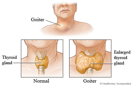 Inside views of a normal thyroid gland and an enlarged thyroid gland (goiter)