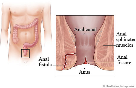 Picture of anal fissure and anal fistula