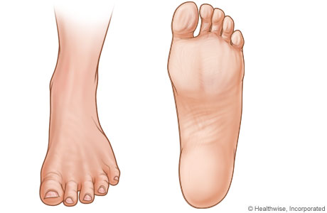 Pictures of left foot