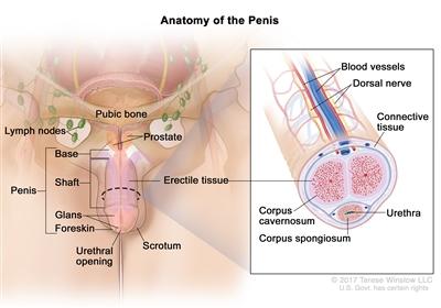 Penile Cancer Treatment (PDQ®): Treatment - Patient Information [NCI]   CS  Mott Children's Hospital   Michigan Medicine