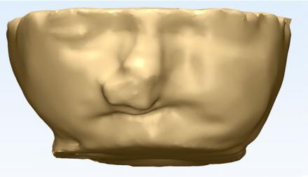 3D fetal head