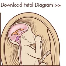 Prenatal Care for Myelomeningocele (Spina Bifida) | CS Mott ...